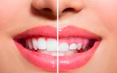 """La Dra. Paula Rosso impartirá la ponencia titulada """"Sonrisa Gingival: nuevo estándar para abordar el área peribucal"""" en nuestro XIX Congreso de Medicina Estética y Antienvejecimiento"""
